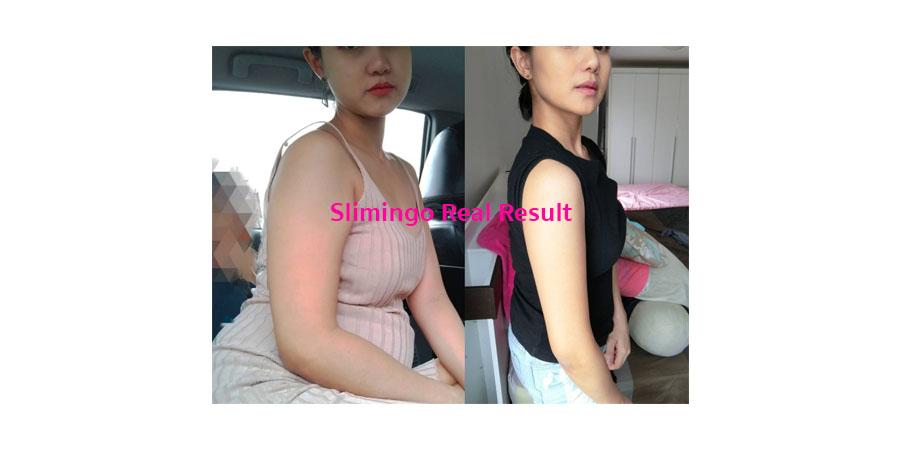 อาหารเสริม-ลดน้ำหนัก-ลดความอ้วน-ท้องผูก-พุงป่อง-รีวิว-ใช้จริง-ปลอดภัย-detox-diet